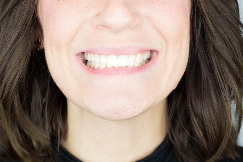 ana albiol invisalign ortodoncia invisible clinica peydro