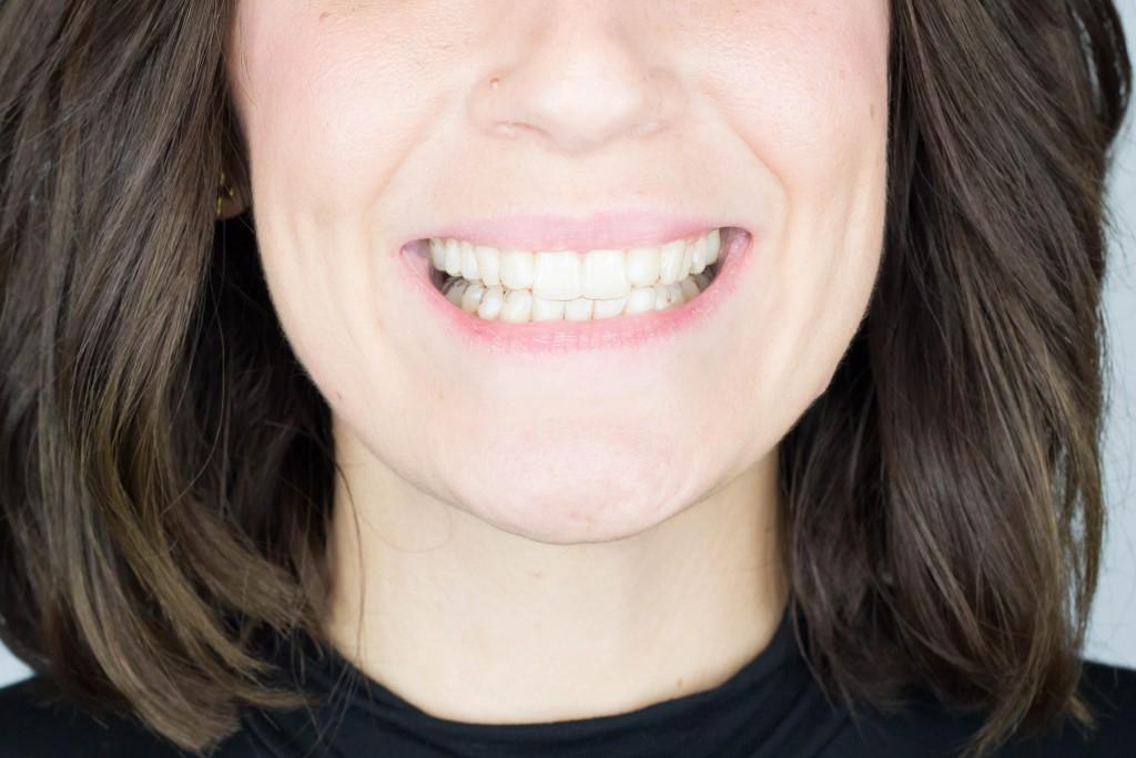 ana albiol invisalign ortodoncia invisible peydro